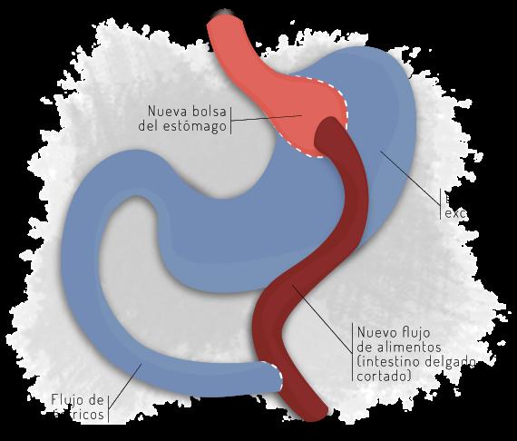 reduccion de estomago con laparoscopia