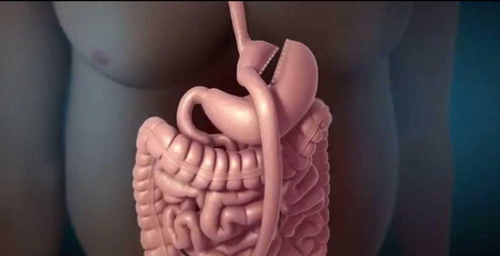 una operación de reducción de estómago