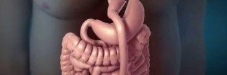 Operación reducción de estómago