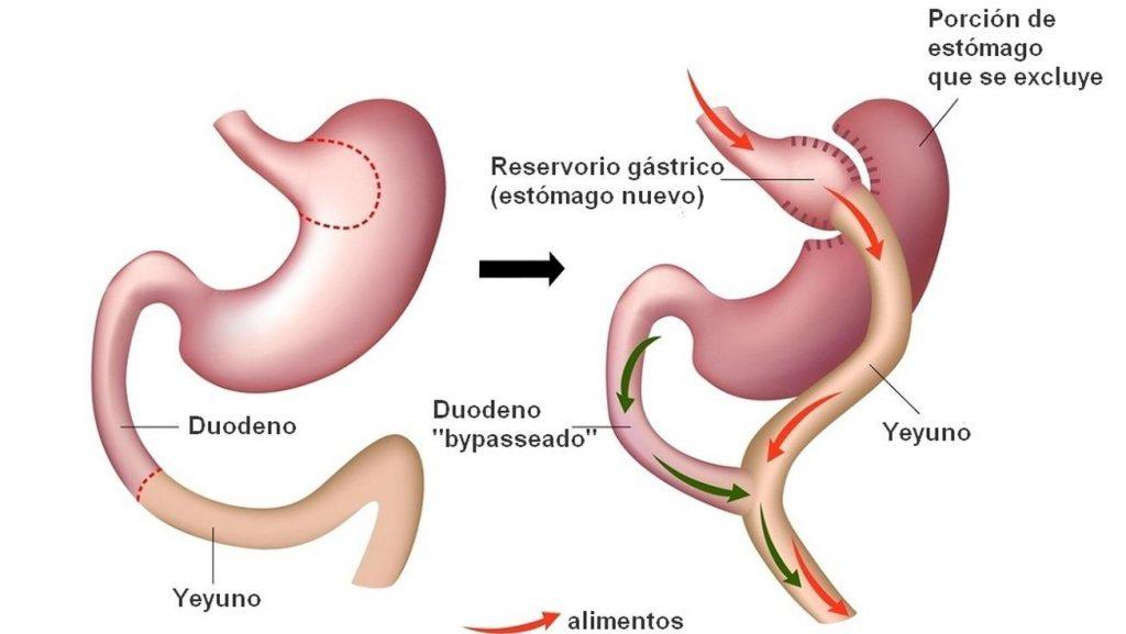 operacion de reduccion de estomago por la seguridad social