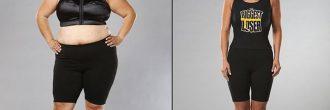 Reducción de estómago antes y después