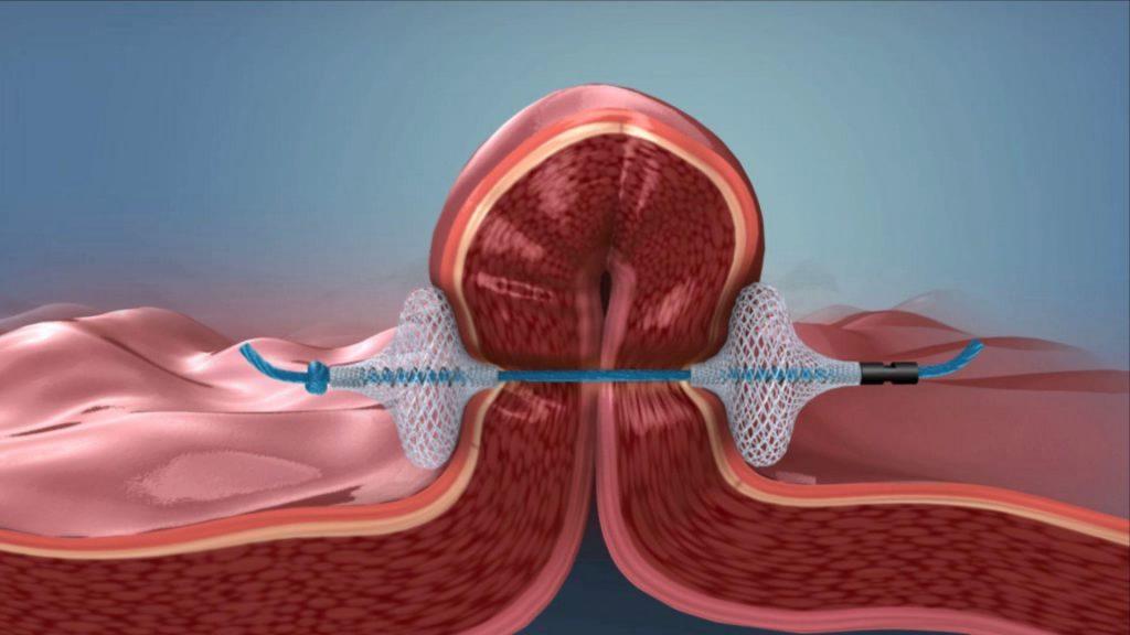 operacion reduccion de estomago bypass